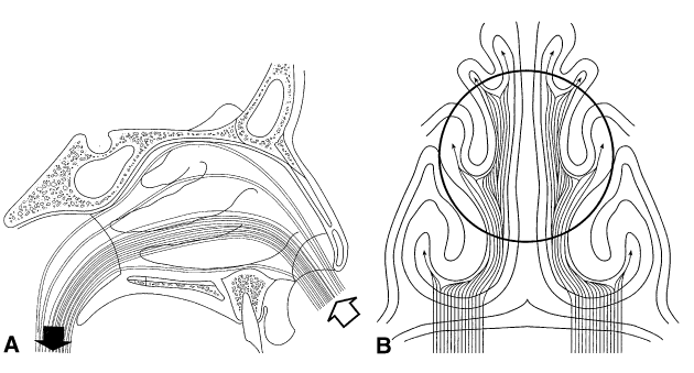 ניתוח מחיצת אף-3